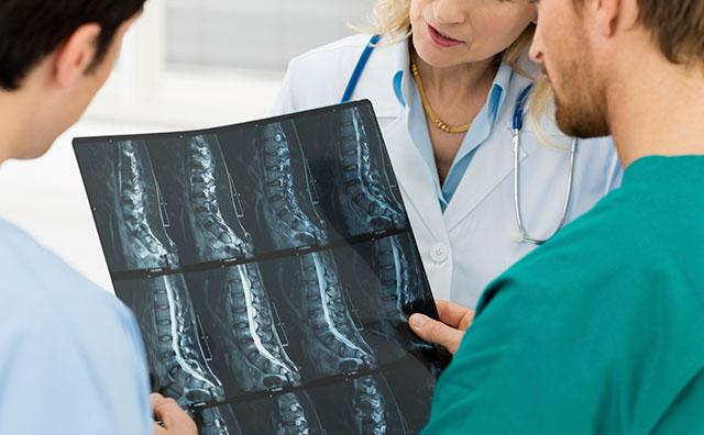 Minimally Invasive Spine Surgery | Los Angeles, CA